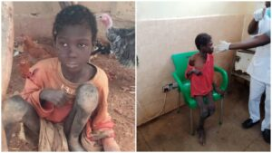Nigerians demand justice for 10-year-old boy starved, chained by father, stepmothers for two years